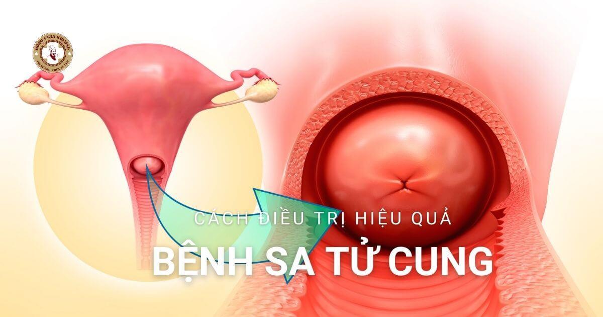 Phác đồ điều trị sa sinh dục (sa tử cung) Bộ y tế